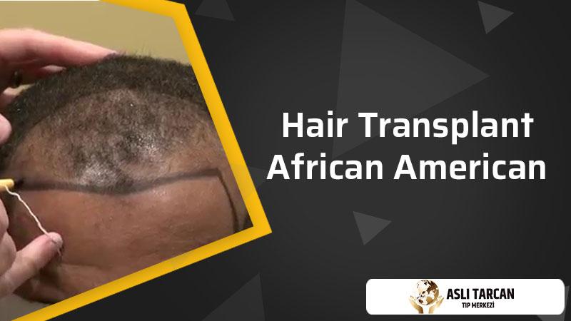 Hair Transplant African American