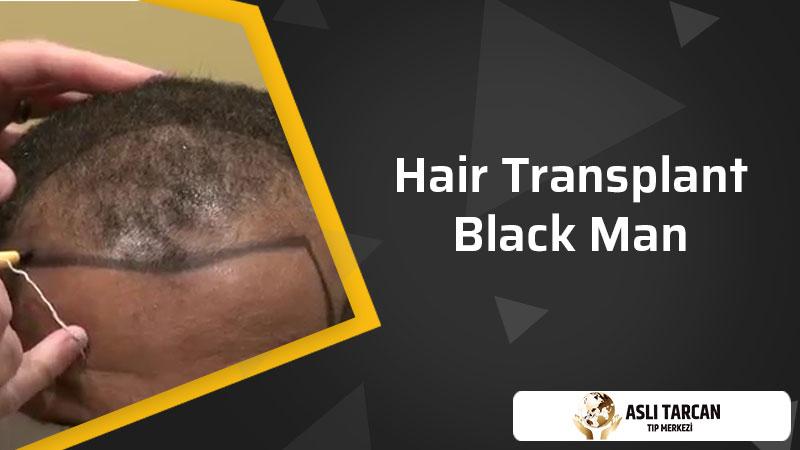 Hair Transplant Black Man