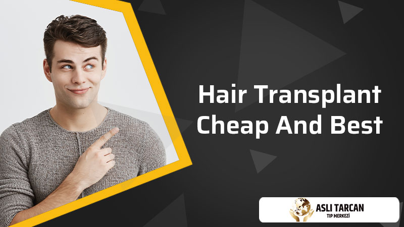 Hair Transplant Cheap And Best