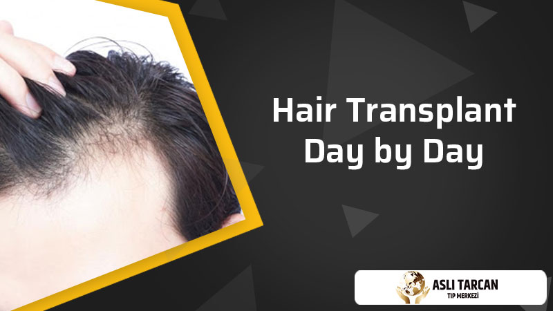 Hair Transplant Day by Day