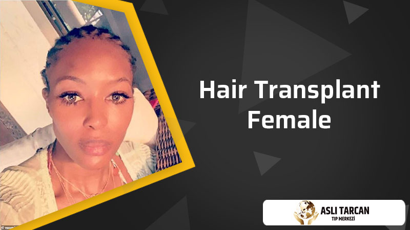 Hair Transplant Female