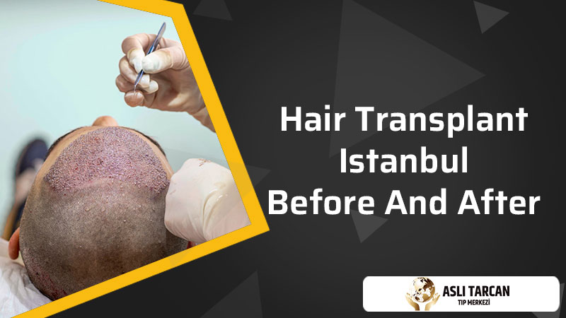 Hair Transplant Istanbul Before and After
