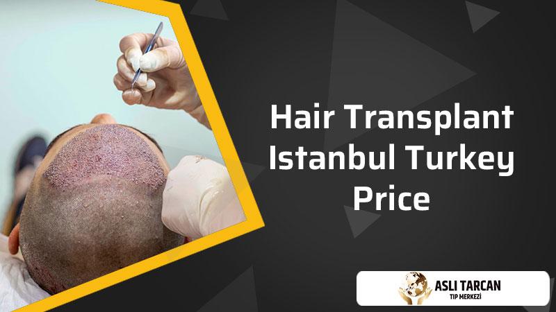 Hair Transplant Istanbul Turkey Price