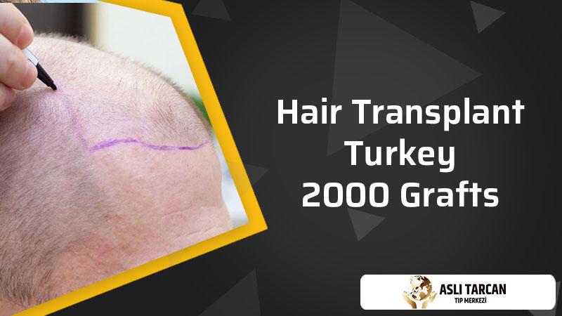 Hair Transplant Turkey 2000 Grafts