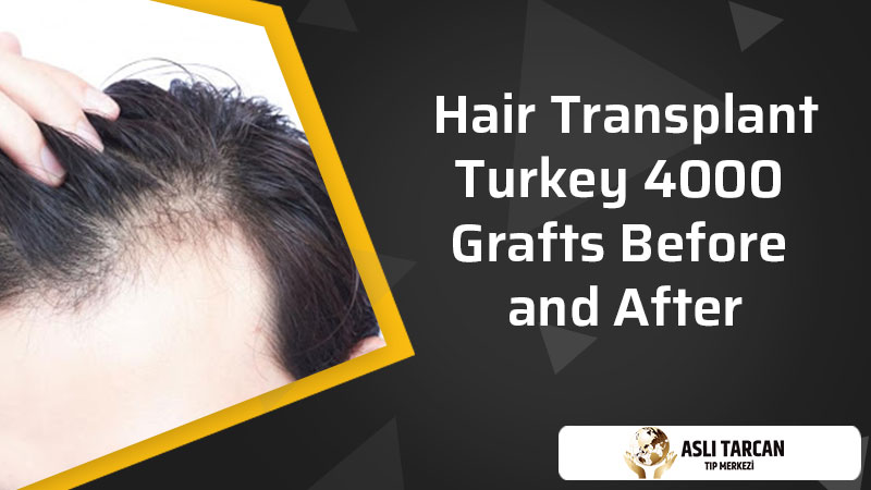 Hair Transplant Turkey 4000 Grafts Before and After