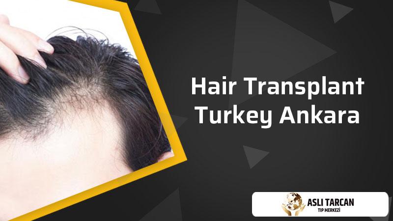 Hair Transplant Turkey Ankara