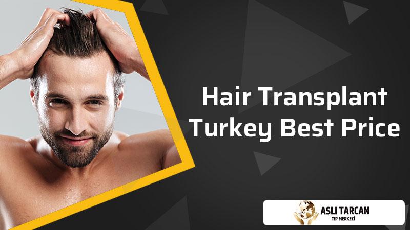 Hair transplant Turkey Best Price