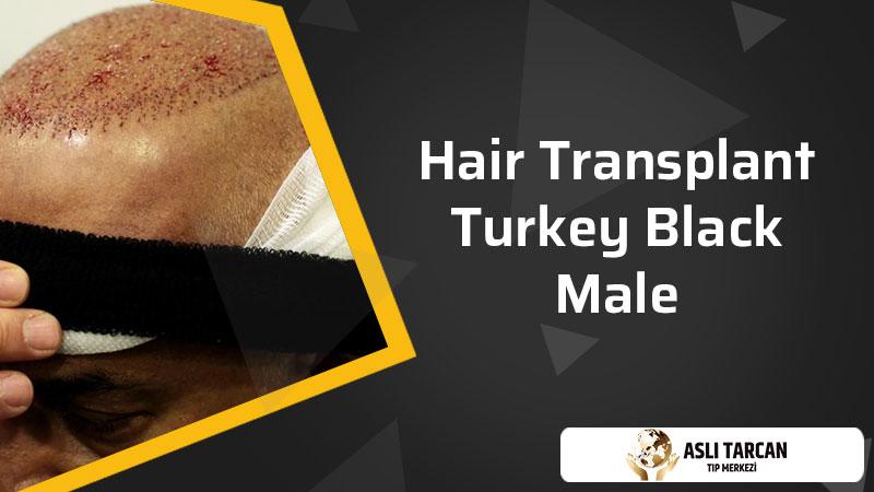 Hair Transplant Turkey Black Male