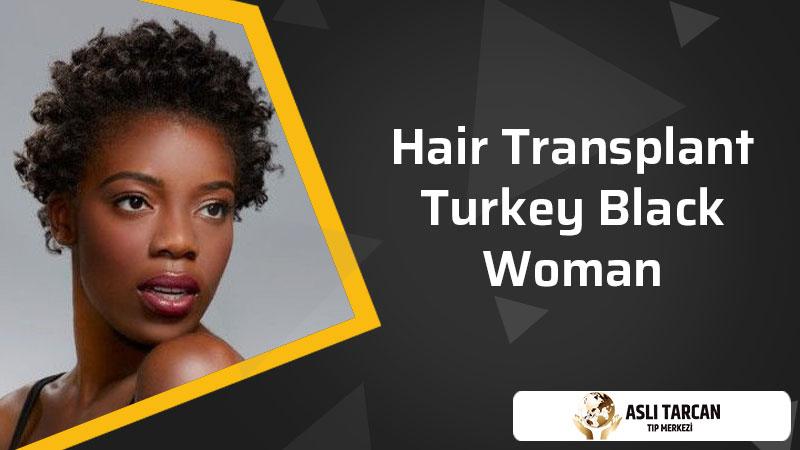 Hair Transplant Turkey Black Woman