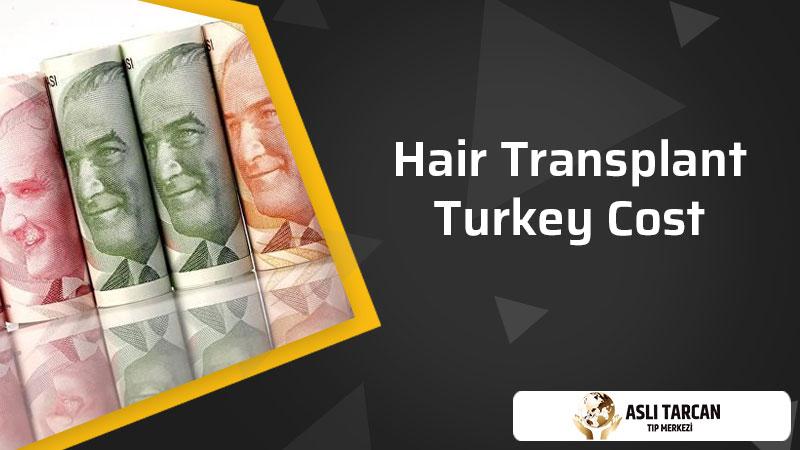 Hair Transplant Turkey Cost