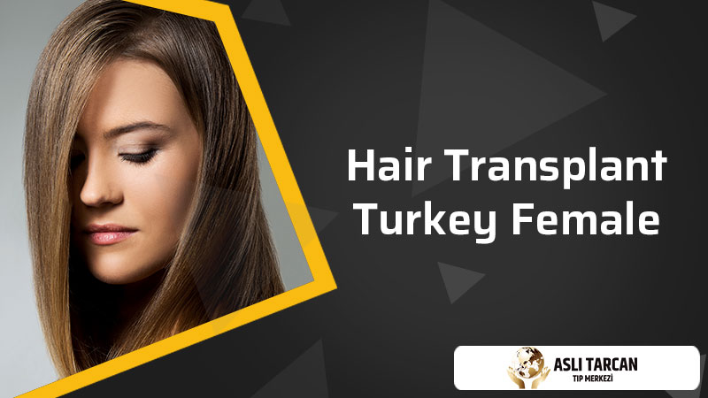 Hair transplant Turkey Female