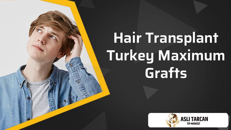 Hair Transplant Turkey Maximum Grafts