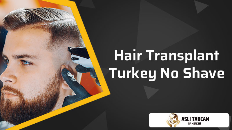 Hair Transplant Turkey No Shave