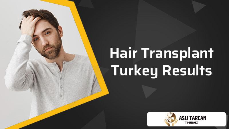 Hair Transplant Turkey Results