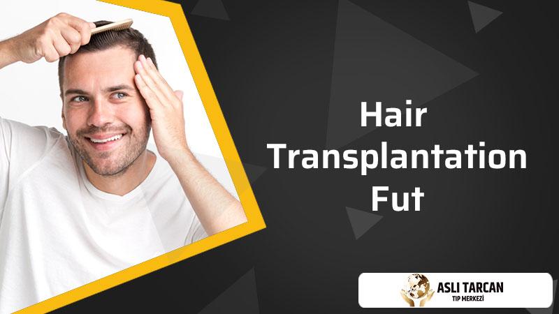 Hair Transplantation FUT