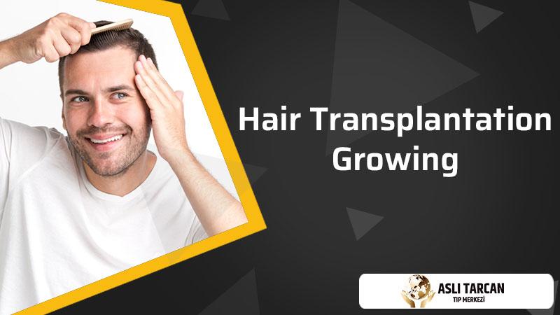 Hair Transplantation Growing