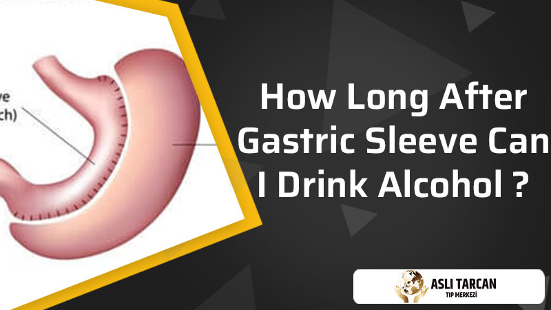 How Long After Gastric Sleeve Can I Drink Alcohol