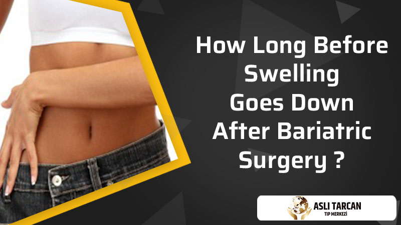 How Long Before Swelling Goes Down After Bariatric Surgery