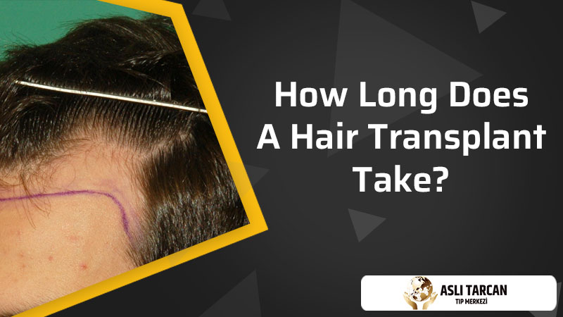 How Long Does A Hair Transplant Take?