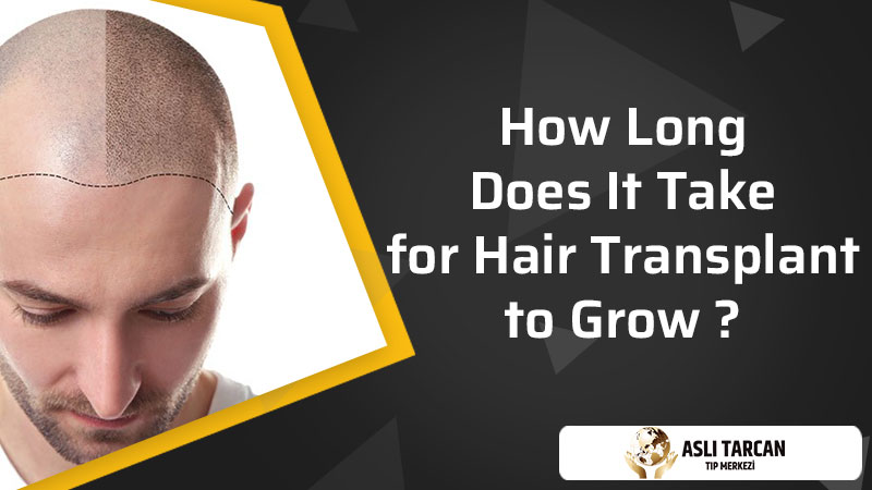 How Long Does It Take for Hair Transplant to Grow