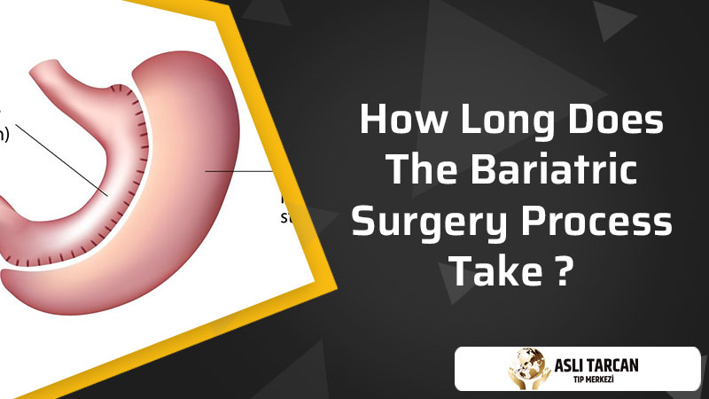 How Long Does The Bariatric Surgery Process Take