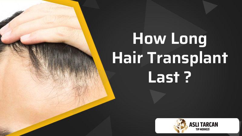 How Long Hair Transplant Last