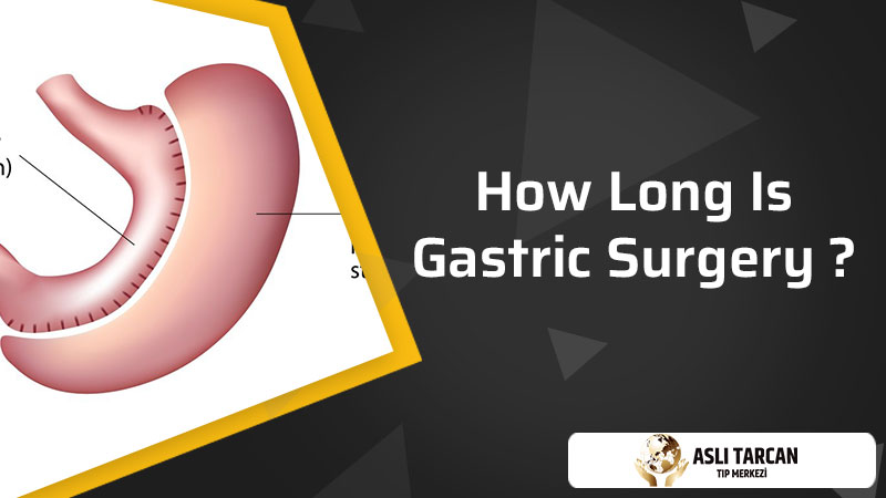 How Long Is Gastric Surgery