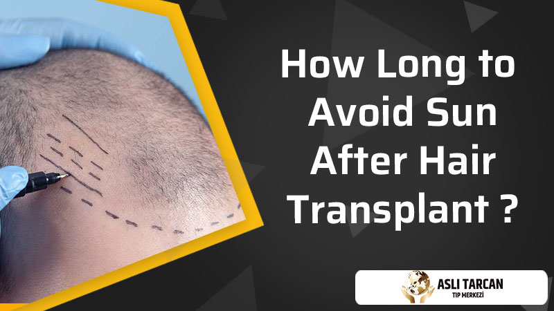 How Long to Avoid Sun After Hair Transplant