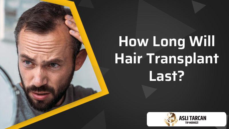How Long Will Hair Transplant Last?