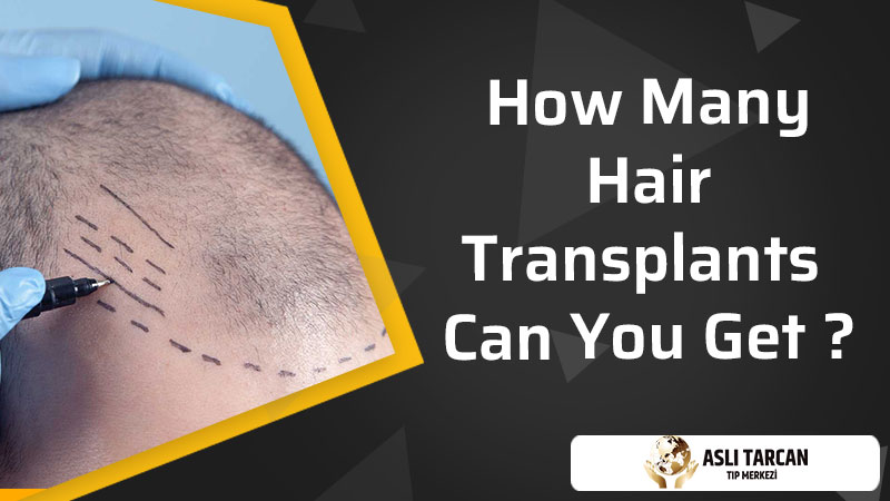 How Many Hair Transplants Can You Get