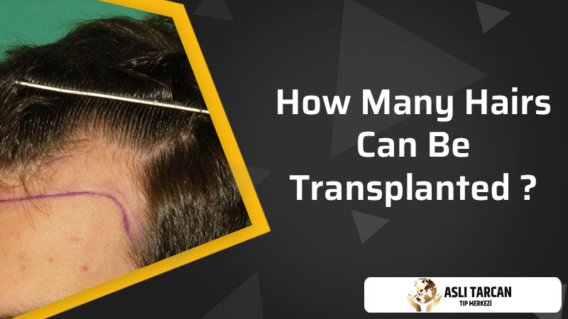 How Many Hairs Can Be Transplanted
