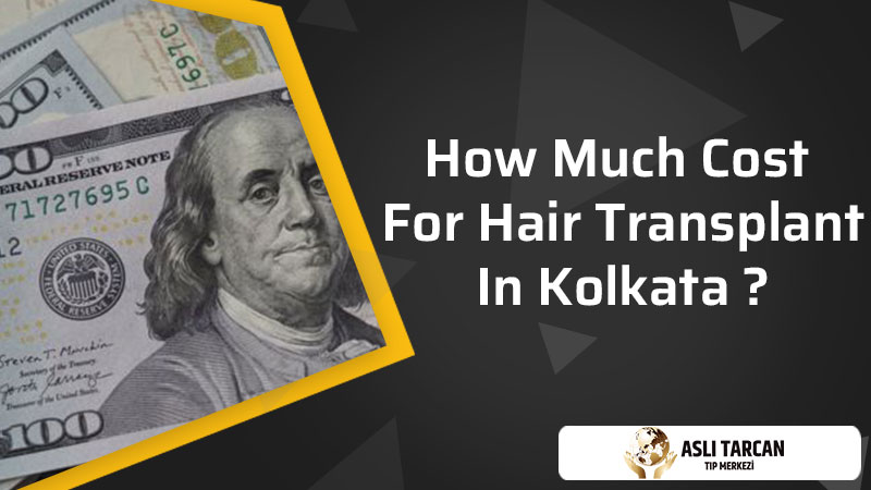 How Much Cost For Hair Transplant In Kolkata