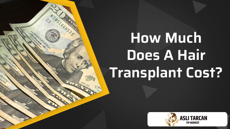 How Much Does a Hair Transplant Cost?