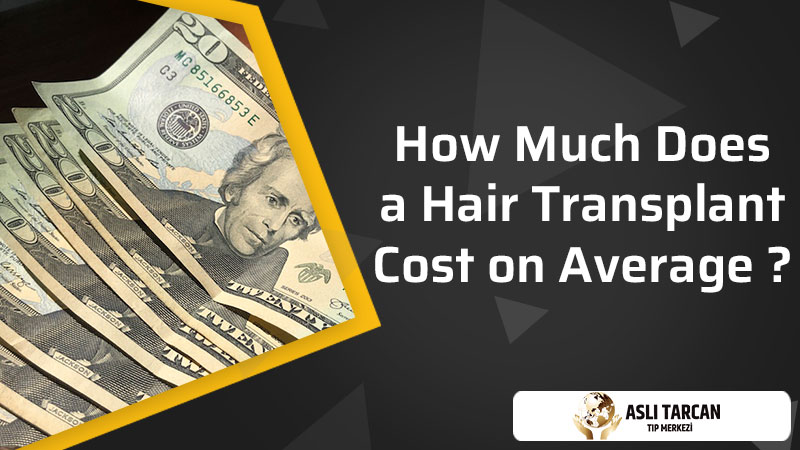 How Much Does a Hair Transplant Cost on Average