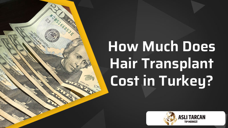 How Much Does Hair Transplant Cost in Turkey