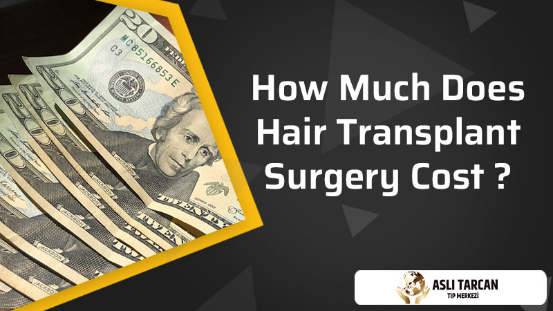 How Much Does Hair Transplant Surgery Cost