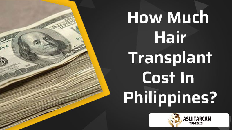 How Much Hair Transplant Cost In Philippines