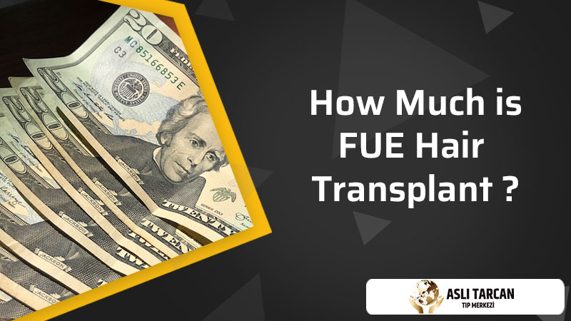 How Much is FUE Hair Transplant