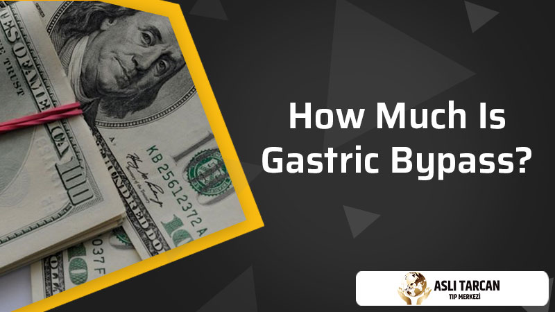 How Much Is Gastric Bypass?