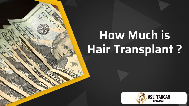How Much is Hair Transplant