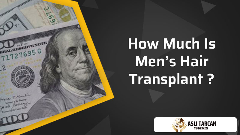 How Much Is Men's Hair Transplant