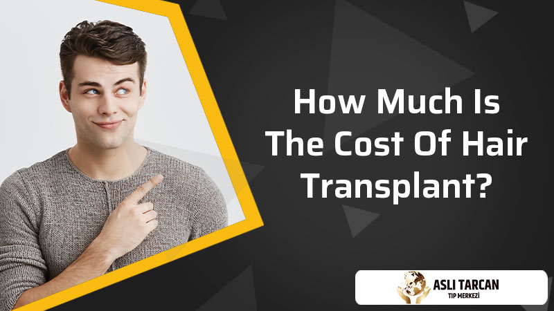 How Much is the Cost of Hair Transplant?