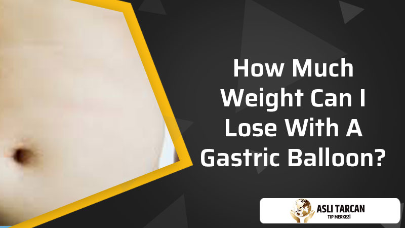 How Much Weight Can I Lose With A Gastric Balloon?