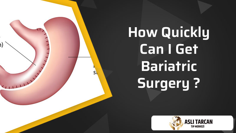 How Quickly Can I Get Bariatric Surgery