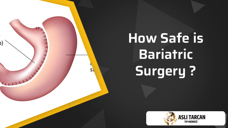How Safe is Bariatric Surgery