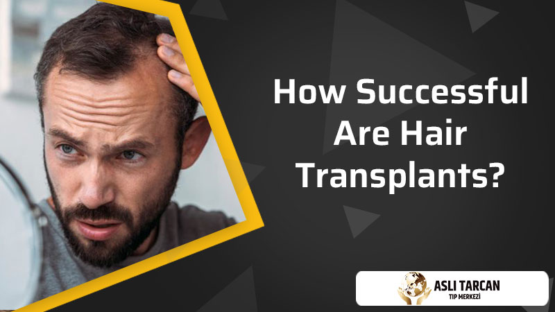How Successful Are Hair Transplants