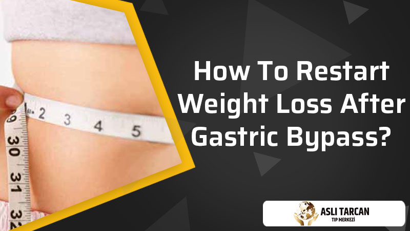 How To Restart Weight Loss After Gastric Bypass?