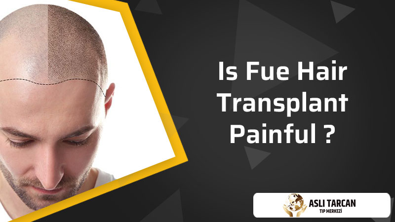 Is Fue Hair Transplant Painful