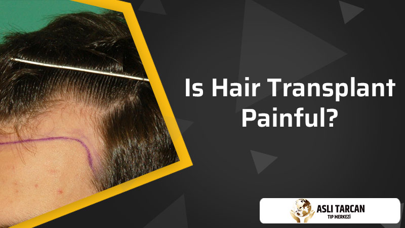 Is Hair Transplant Painful