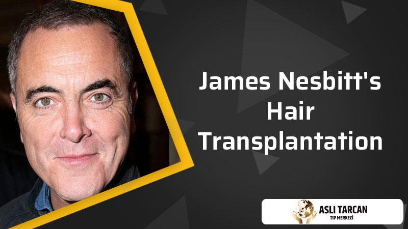James Nesbitt's Hair Transplantation